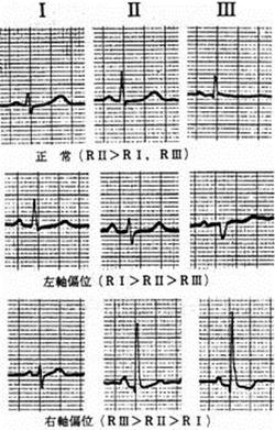 標準12誘導心電図とは?双極誘導と単極誘導の違い