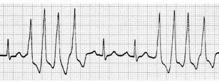 [心電図付き]異所性刺激生成異常の特徴一覧