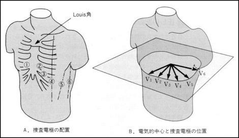胸部誘導の見方と波形から読み取る心臓疾患
