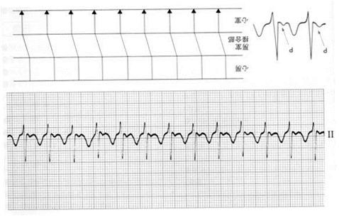刺激生成異常による洞頻脈、洞徐脈の心電図の特徴